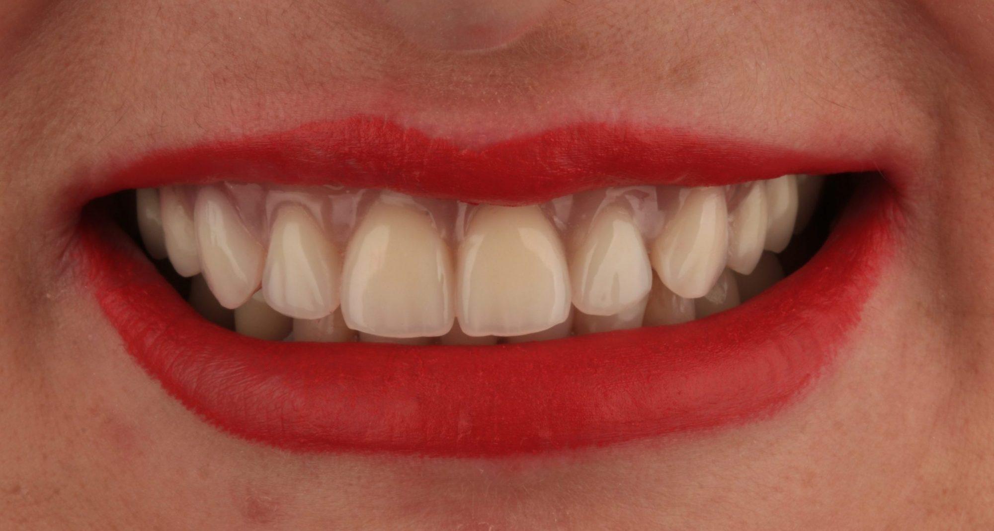implantes dentários clinica dentária Porto