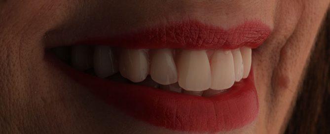 sorriso novo