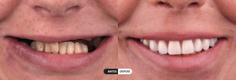 imagem-AeD-dentes-silvia