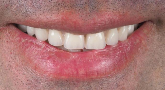 Implantes Dentários - Dra. Marisa Zenha