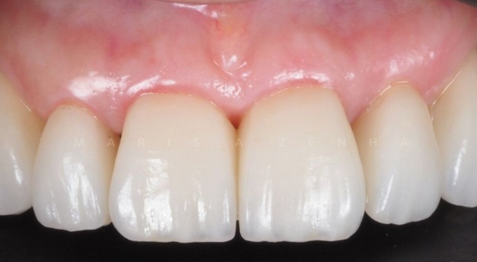 Facetas Dentárias Clínica Marisa Zenha