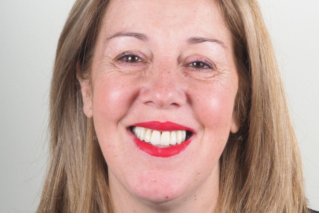 Drª. Marisa Zenha - Dentes em Um Dia