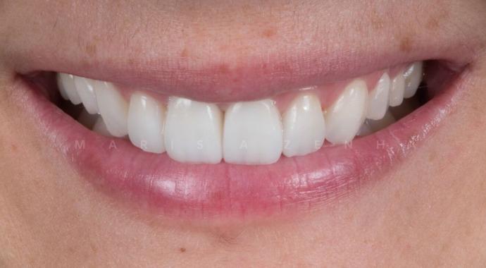 Facetas Dentárias - Clínica Marisa Zenha