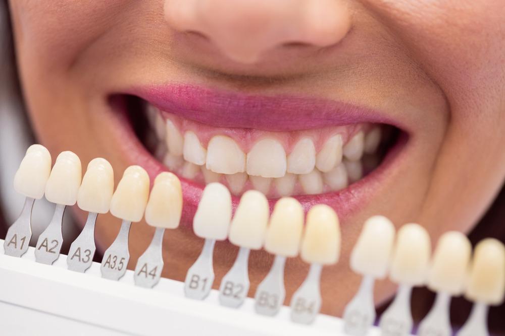 Branqueamento Dentário - Branqueamento em cadeira - Marisa Zenha