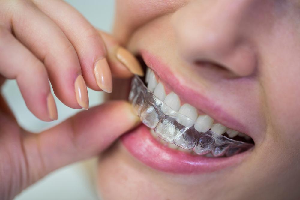 Branqueamento dentário - Branqueamento em ambulatório - Marisa Zenha
