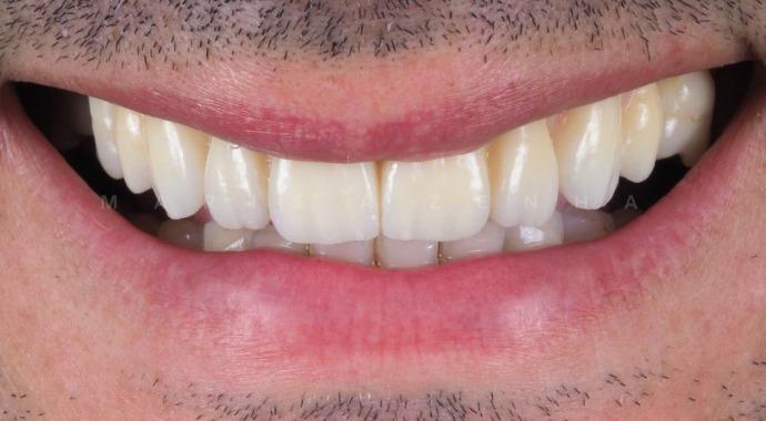 Implantes Dentários - Marisa Zenha