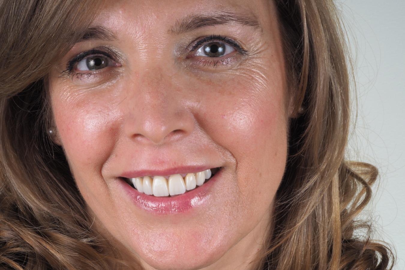 Manuela - Coroas Dentárias