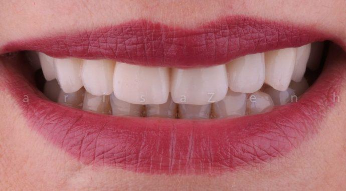 Implantes dentarios clinica dentaria porto