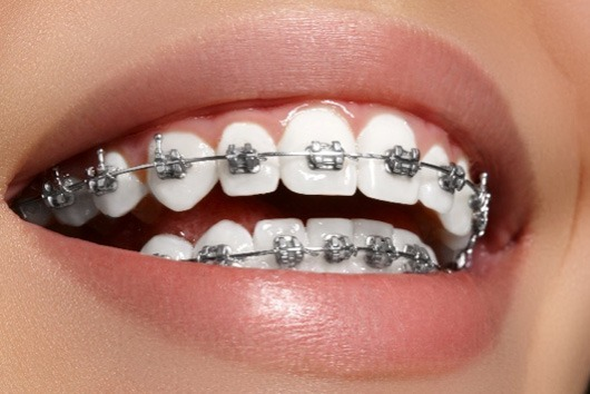 aparelho dentario clinica dentaria porto2