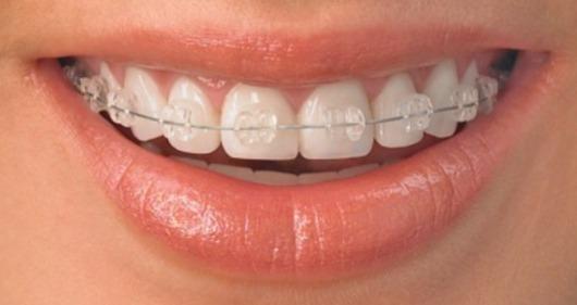 aparelho dentario clinica detaria porto