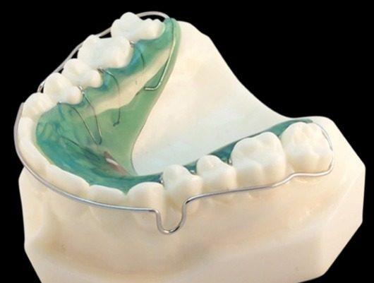 aparelho dentario removivel clinica dentaria porto