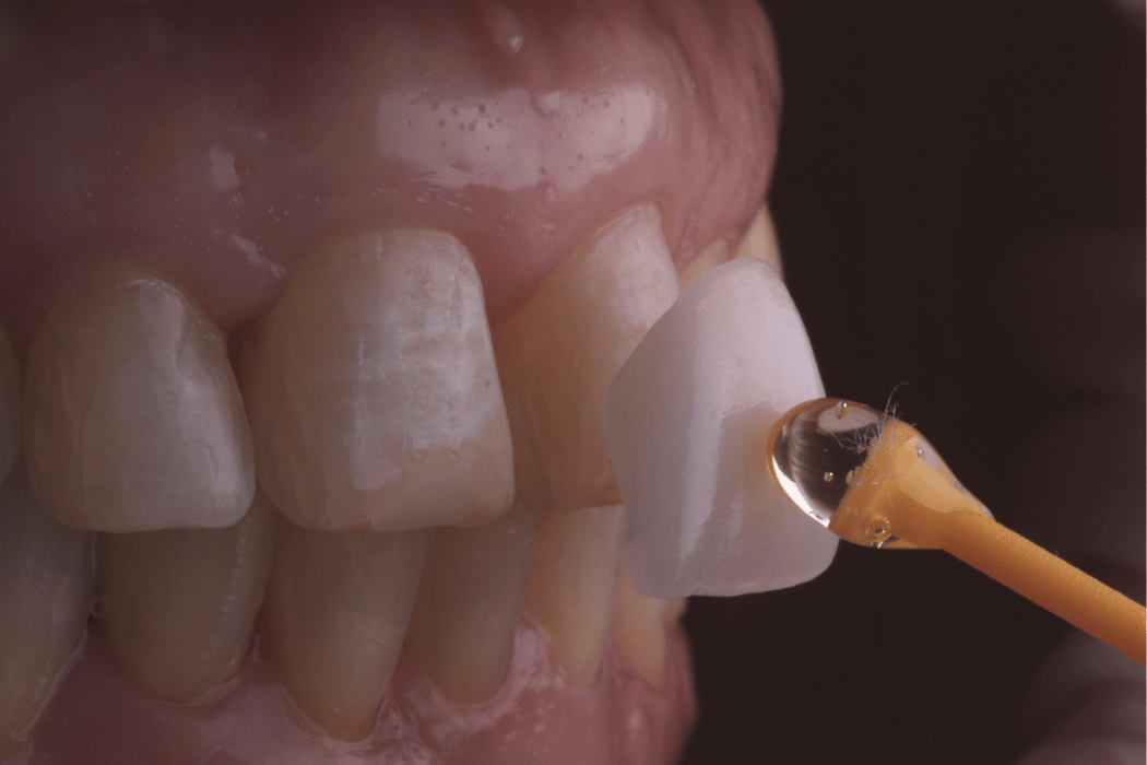 colocar facetas dentarias