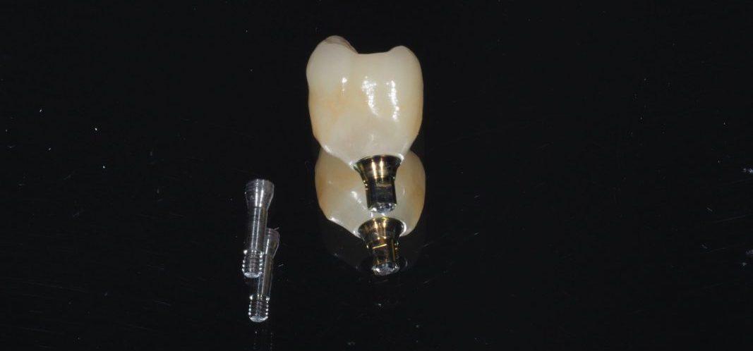 implantes dentários Porto
