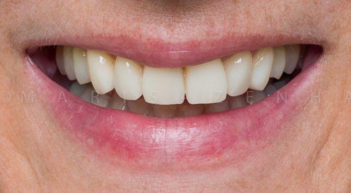 facetas dentárias Marisa Zenha 10 Porto