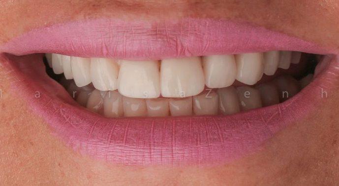 facetas dentarias clinica dentária porto
