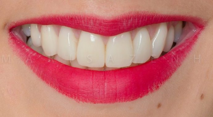 facetas dentarias clinica dentaria porto