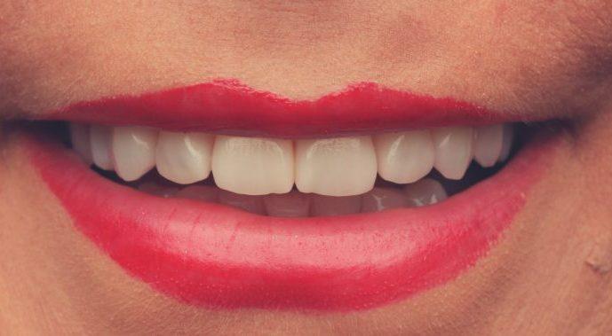 facetas dentarias clinica dentaria porto2