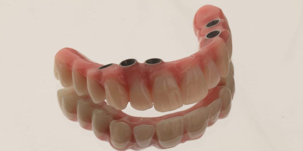 implante dentário clinica dentária porto