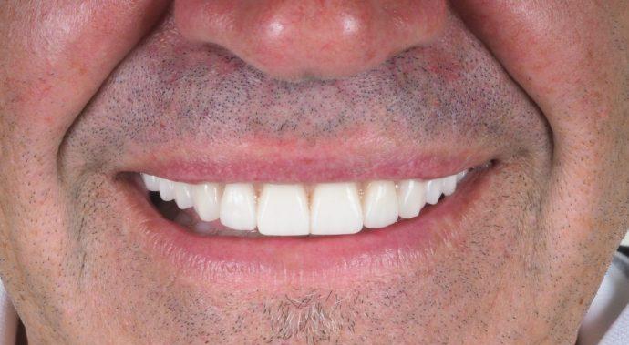 implante dentario clinica dentaria porto