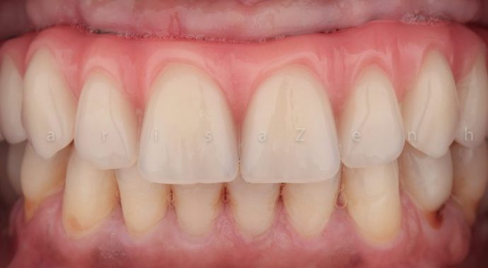 implantes dentarios clinica dentario porto marisa