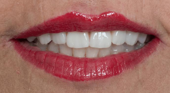 implantes dentarios dentes em um dia clinica dentaria porto
