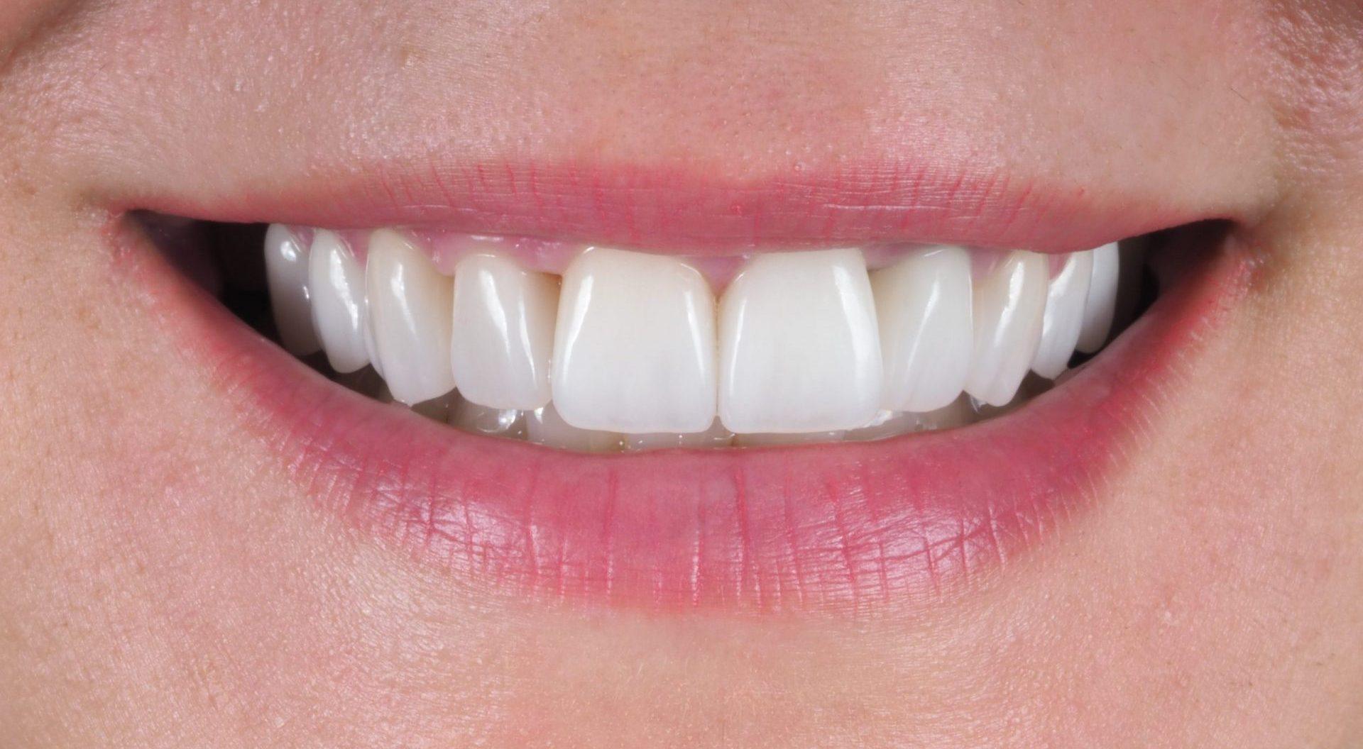 facetas dentarias dentista