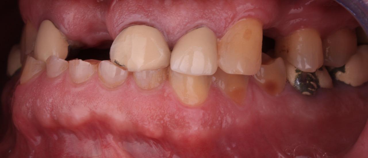 caso de desgaste dentário