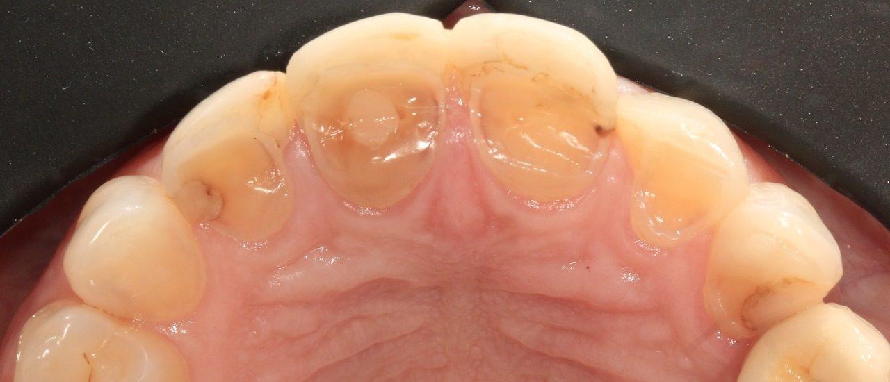 desgaste dentário