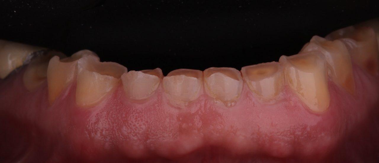 paciente que sofre de desgaste dentário