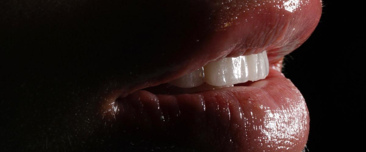 resultado final branqueamento dentário