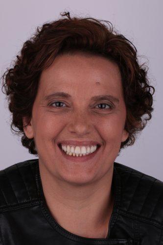 implantes dentários com pouco osso depois