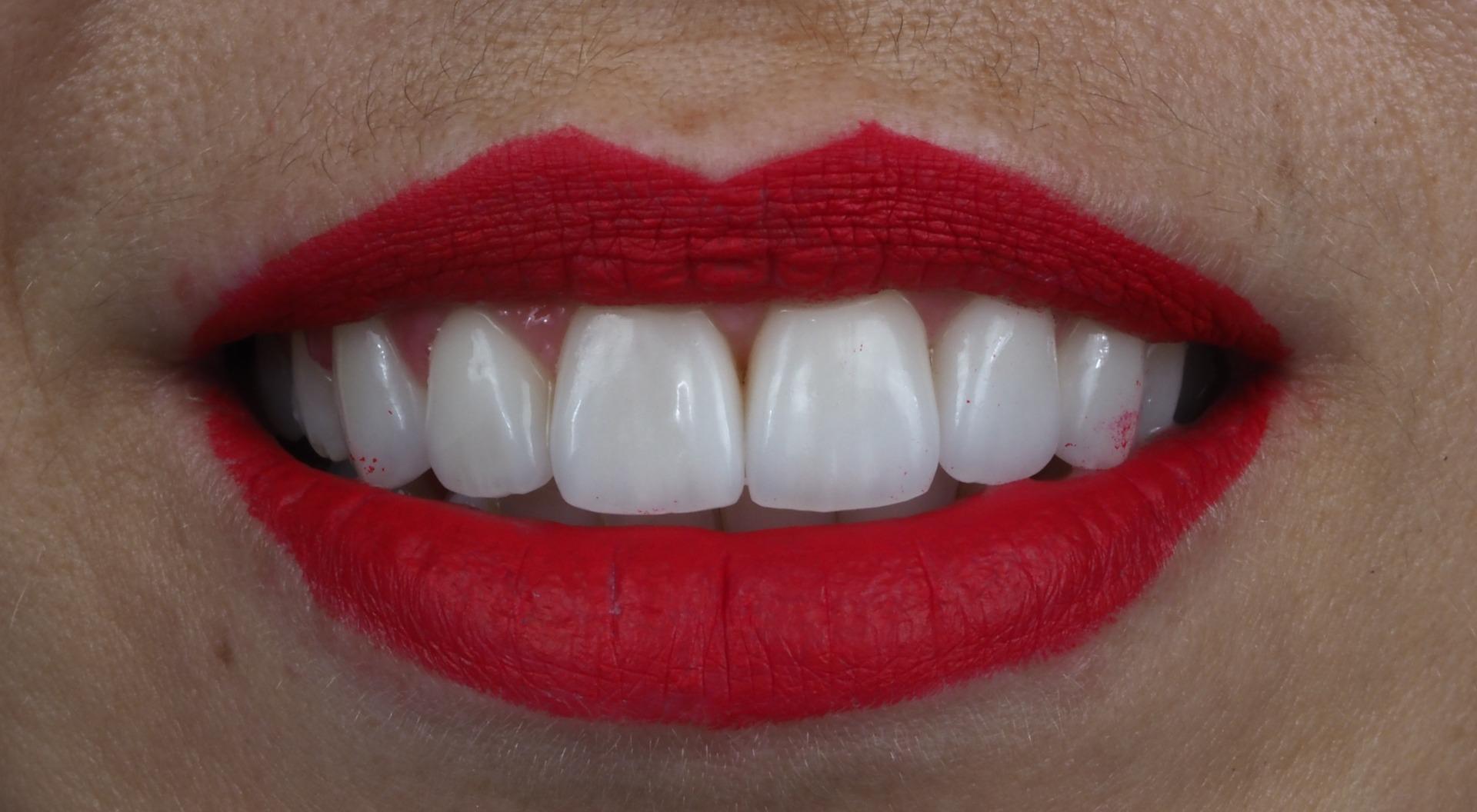 facetas dentárias marisa zenha - capa