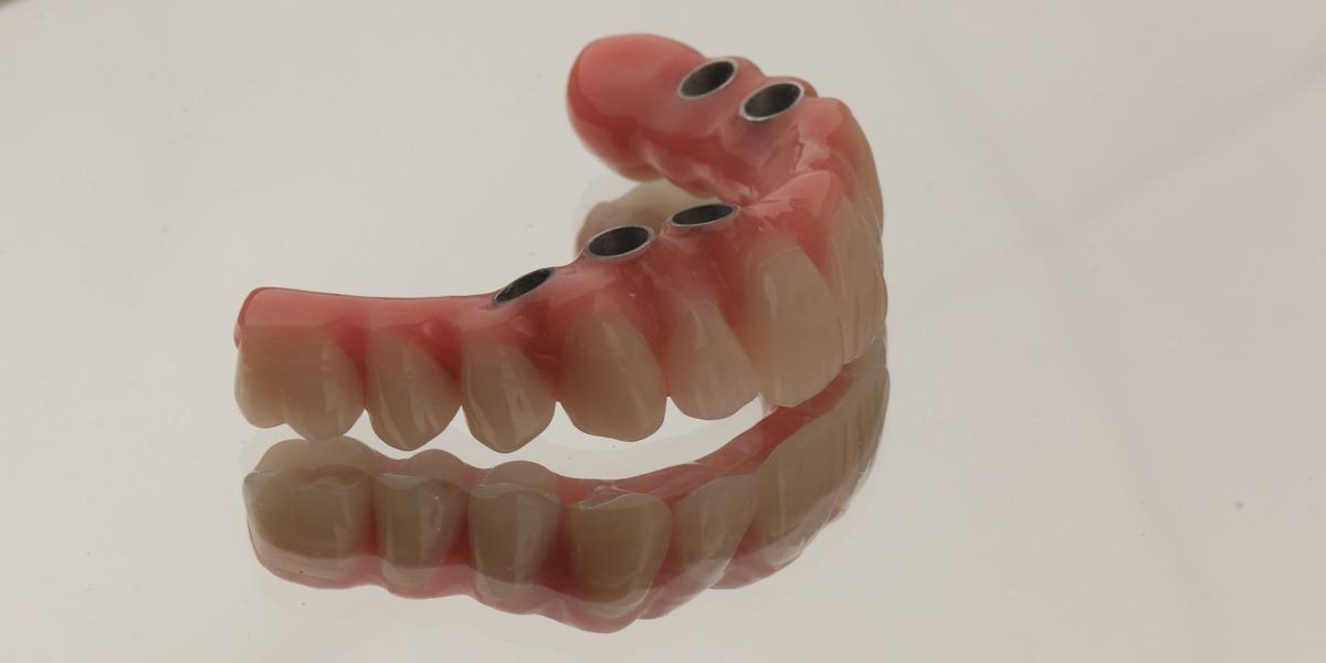 dentes em um dia implantes